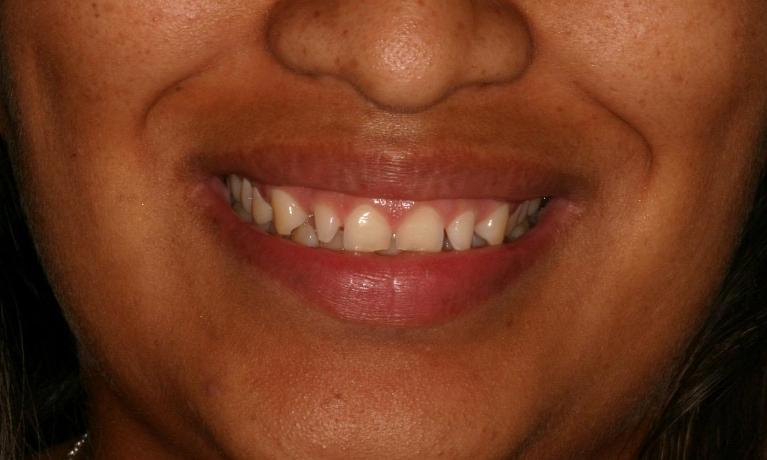 Snap-On-Smile-Before-Image