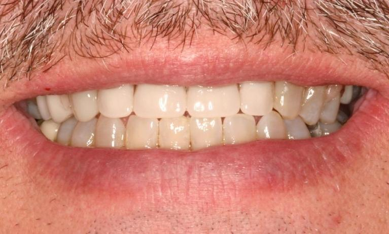 Clear-Partial-Dentures-After-Image