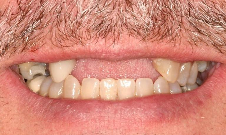 Clear-Partial-Dentures-Before-Image
