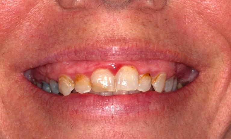 CEREC-Single-Visit-Crowns-Before-Image