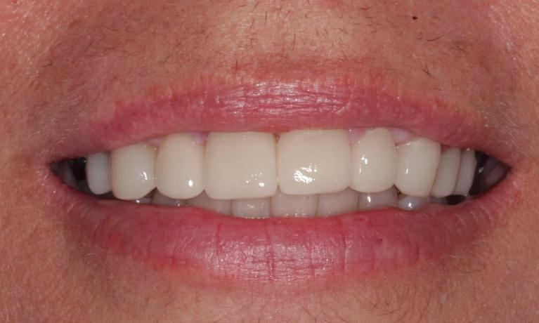 CEREC-Single-Visit-Crowns-After-Image
